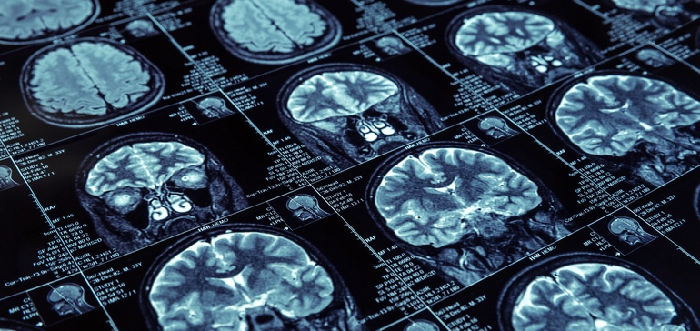First-of-its-kind trial in ALS spurs hope for brutal disease